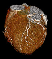 A colorized CT scan of the heart using only 0.7 mSv of radiation (Image courtesy of Drs. Marcus Chen and Andrew Arai of the National Heart, Lung, and Blood Institute)