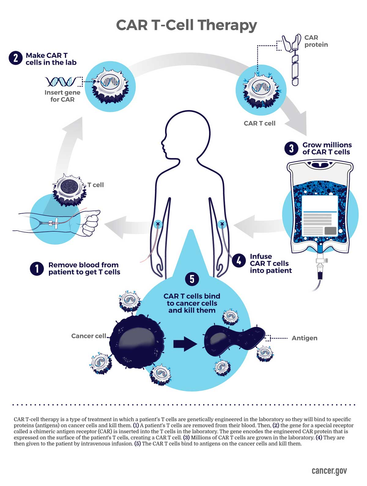 Car T Cell Therapy Infographic National Cancer Institute