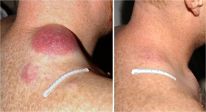 Before and after pictures of a patient with advanced melanoma who underwent treatment with tumor-infiltrating lymphocytes.