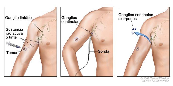 Biopsia de ganglio linfático centinela - National Cancer Institute