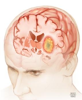 Ilustración de un glioma en el cerebro