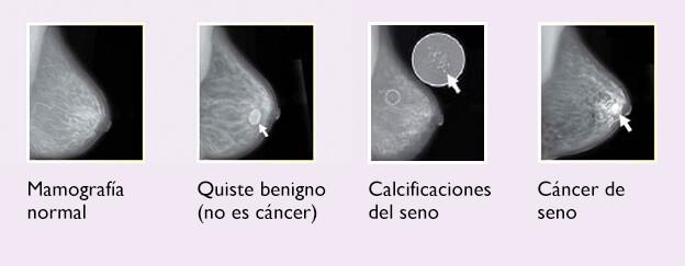 453dffa64 Estas imágenes son ejemplos de cambios en los senos que se pueden ver en  una mamografía. Puede saber más sobre mamografías en nuestra hoja  informativa de ...