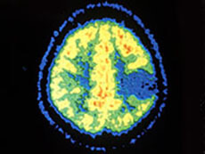 Astrocytoma Brain PET Scan