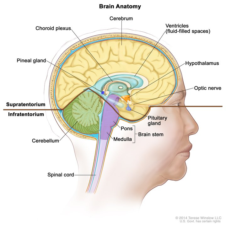 patient with brain tumor responds dramatically to targeted therapy Brain Herniation Diagram craniopharyngiomas can damage parts of the brain, including the hypothalamus, pituitary gland, optic nerve, and brain stem, causing serious neurological