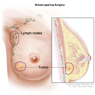breast sparing surgery illustration
