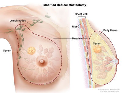 modified radical masectomy illustration