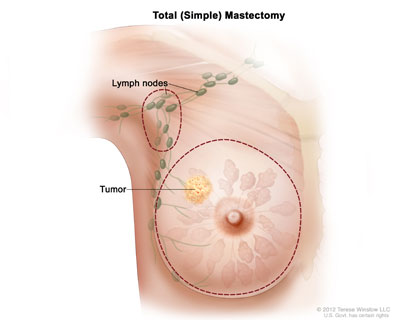 total simple masectomy illustration