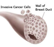 Invasive breast cancer cells growing through the wall of a breast duct illustration