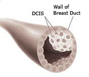 A breast duct with ductal carcinoma in situ (DCIS) illustration