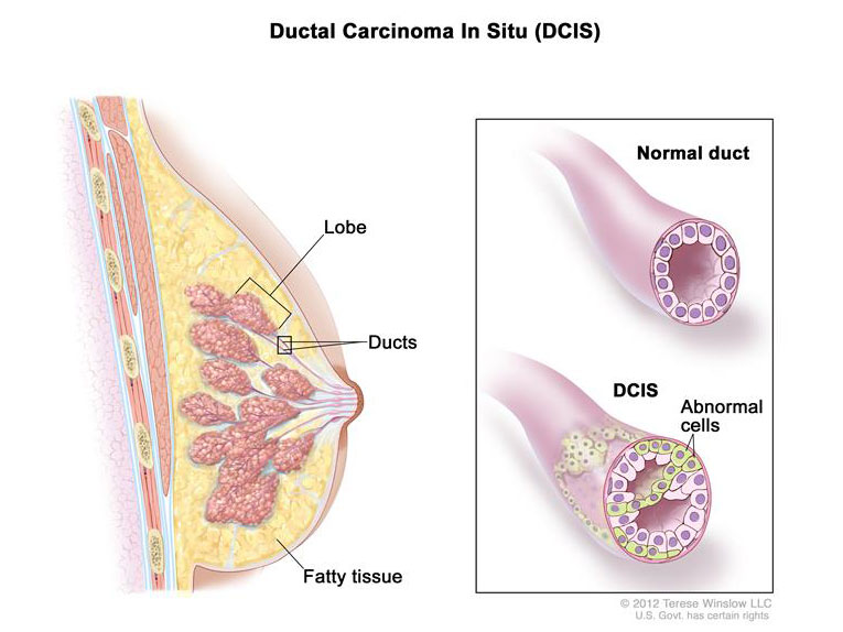 Ductal adenocarcinoma of the breast
