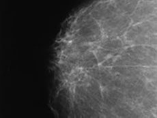 A mammogram image of a dense breast