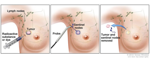 Sentinal node breast cancer