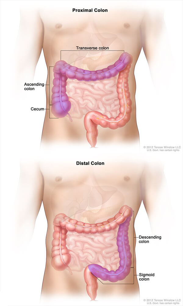 Colorectal Cancer Survival Linked To Tumor Location National