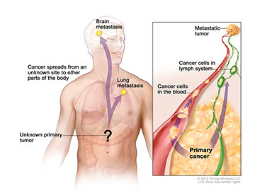In carcinoma of unknown primary, cancer cells have spread in the body but the place where the primary cancer began is unknown.