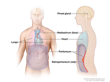 Extragonadal germ cell tumors form in parts of the body other than the gonads (testicles or ovaries). This includes the pineal gland in the brain, the mediastinum (area between the lungs), and retroperitoneum (the back wall of the abdomen).