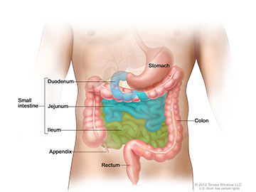 Gastrointestinal carcinoid tumors form in the lining of the gastrointestinal tract, most often in the appendix, small intestine, or rectum.