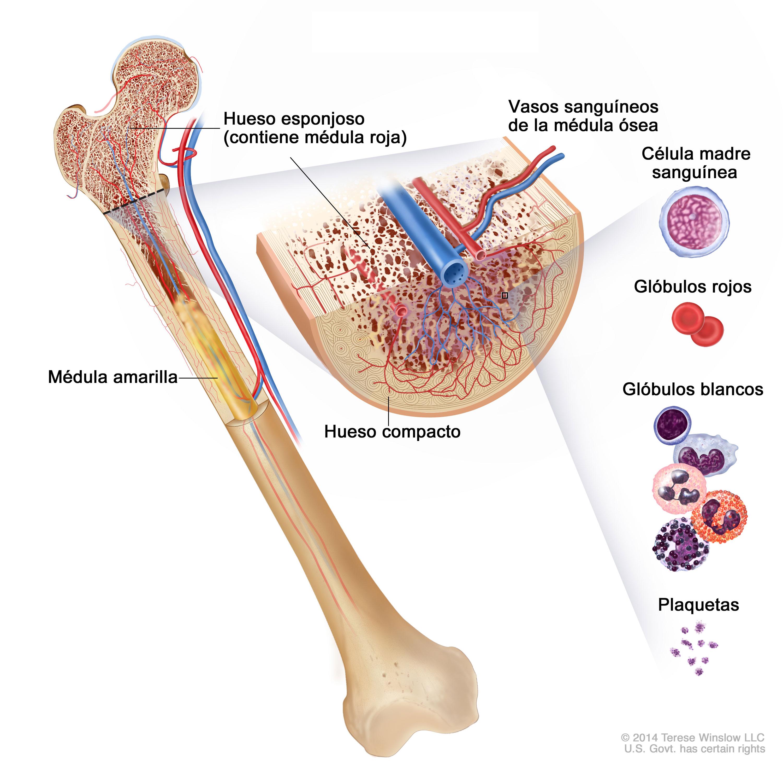 cancer a los huesos: