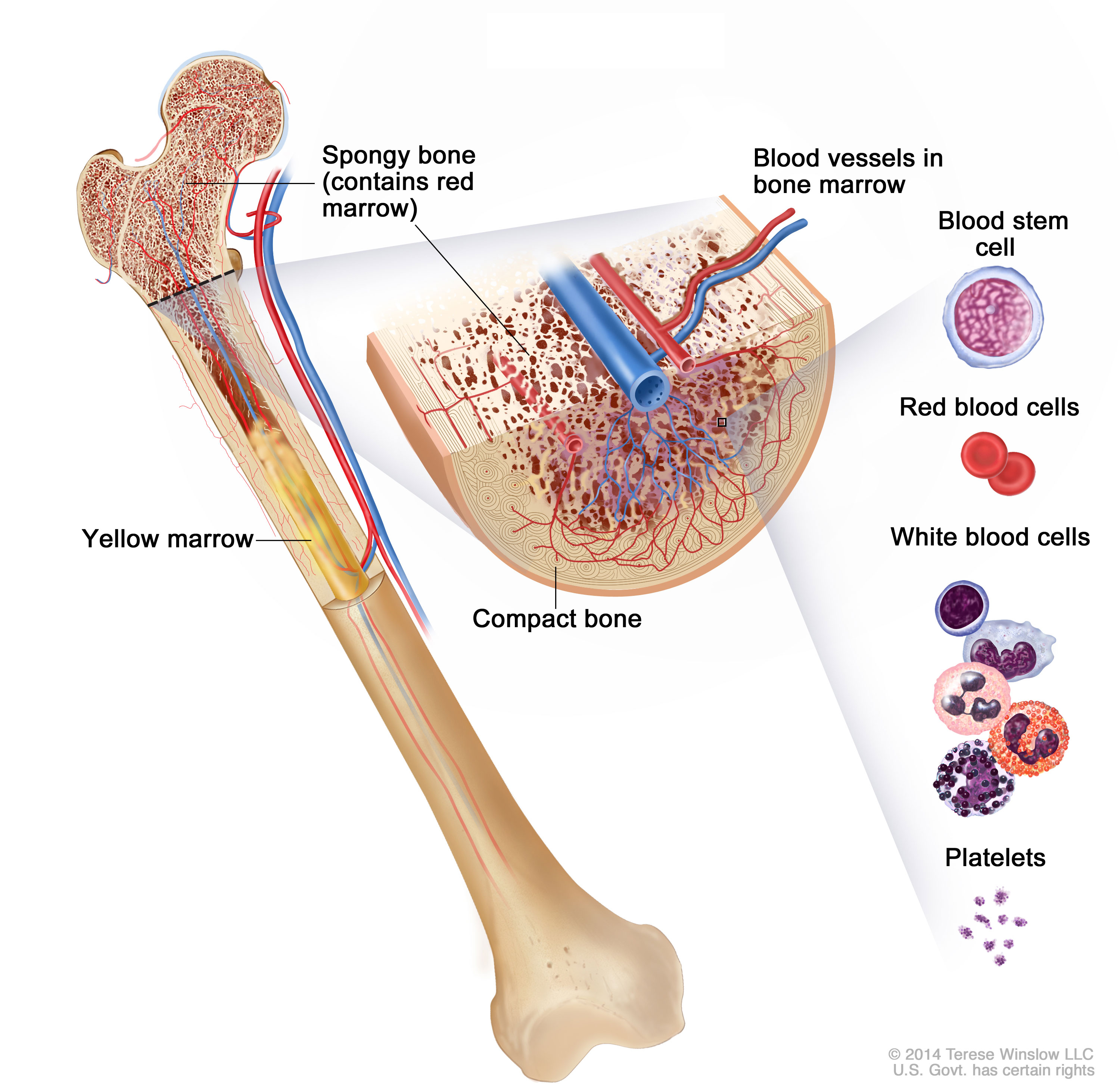 bone cancer—patient version - national cancer institute, Human Body