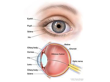 Intraocular Eye Melanoma Patient Version National