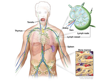 Anatomy of the lymph system, showing the lymph vessels and lymph organs including lymph nodes, tonsils, thymus, spleen, and bone marrow. Lymph (clear fluid) and lymphocytes travel through the lymph vessels and into the lymph nodes where the lymphocytes destroy harmful substances. The lymph enters the blood through a large vein near the heart.