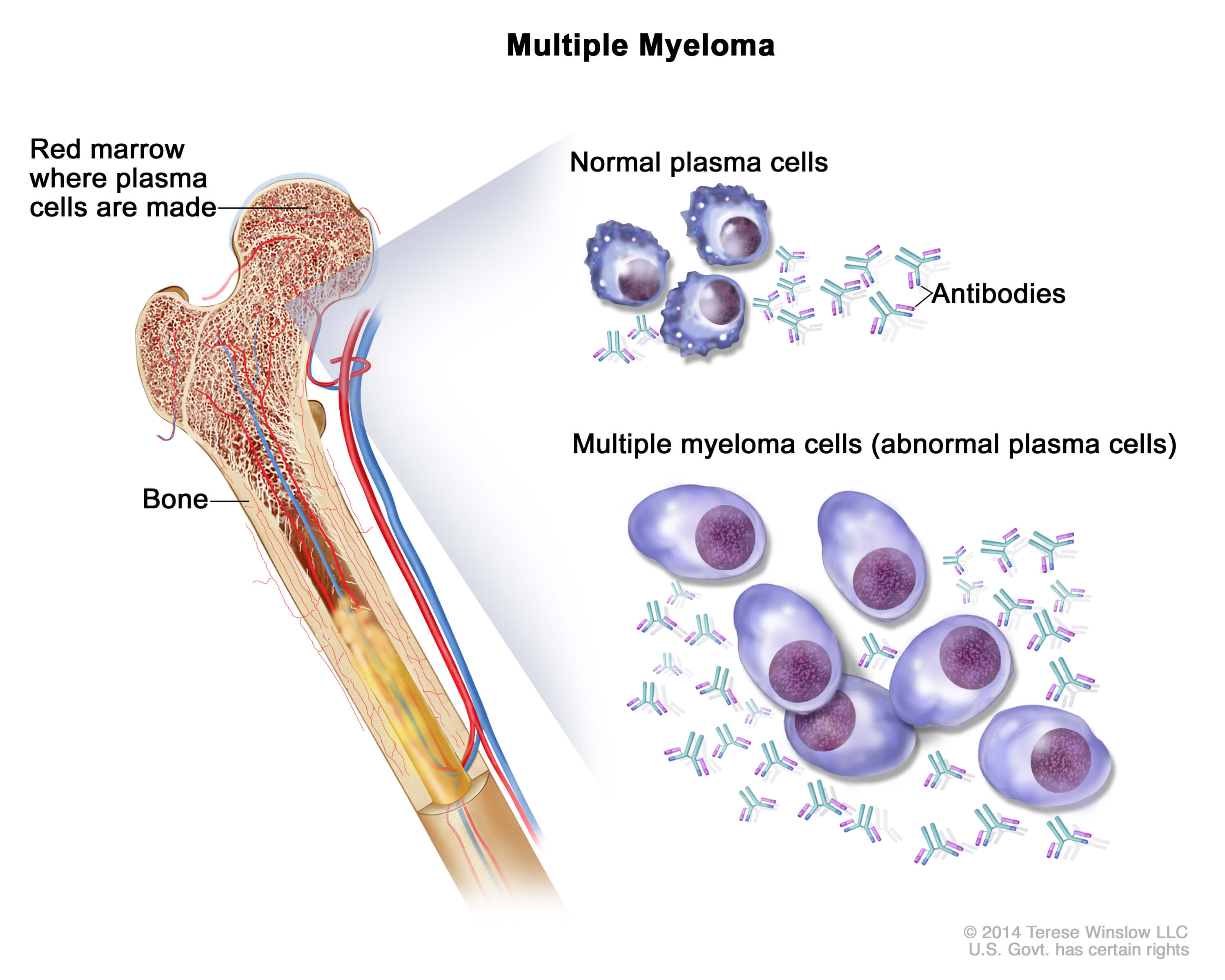 Plasma cell neoplasms including multiple myelomapatient version multiple myeloma cells are abnormal plasma cells a type of white blood cell that build up in the bone marrow and form tumors in many bones of the body publicscrutiny Choice Image