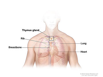 Anatomy of the thymus gland; illustration shows the thymus gland in the upper chest under the breastbone. Also shown are the ribs, lungs, and heart.