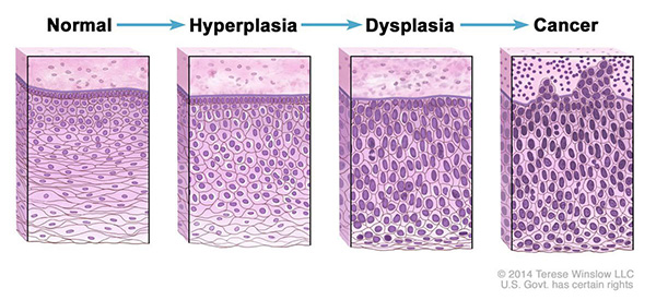 Drawing of four panels showing how normal cells may become cancer cells. The first panel shows normal cells. The second and third panels show abnormal cell changes called hyperplasia and dysplasia. The fourth panel shows cancer cells.
