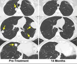 The CAT scans of a patient with synovial cell sarcoma, taken pre-treatment and at 14 months, show a dramatic response of lung metastases to treatment with the NY-ESO-1 gene-engineered cells.