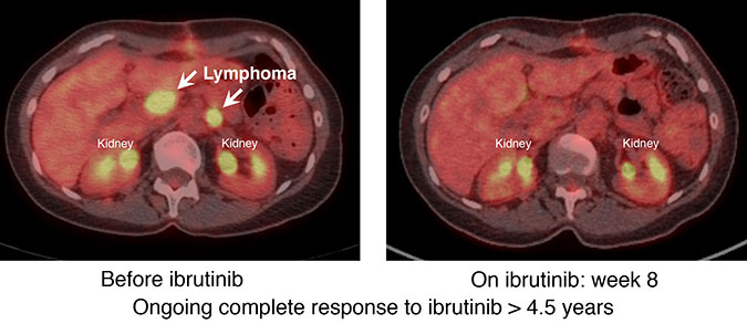 CT cross-section scans of abdomen with left image showing lymphoma highlighted in yellow and right image showing disappearance of cancer after 8 weeks on cancer drug ibrutinib.