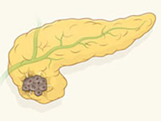 Figure 1: GPC1 distinguishes pancreatic cancer from benign disease.