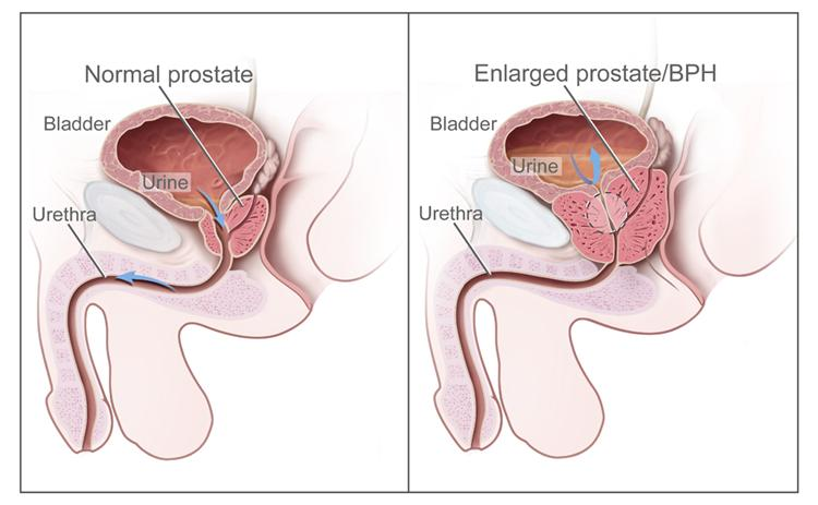Urine flow in a normal and enlarged prostate. In diagram on the left, urine flows freely. On the right, urine flow is affected because the enlarged prostate is pressing on the bladder and urethra.