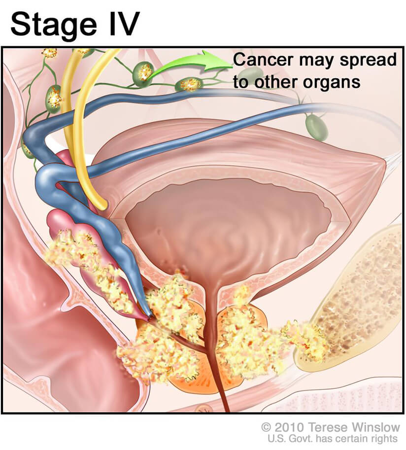 New Subtype of Treatment-Resistant Prostate Cancer ...