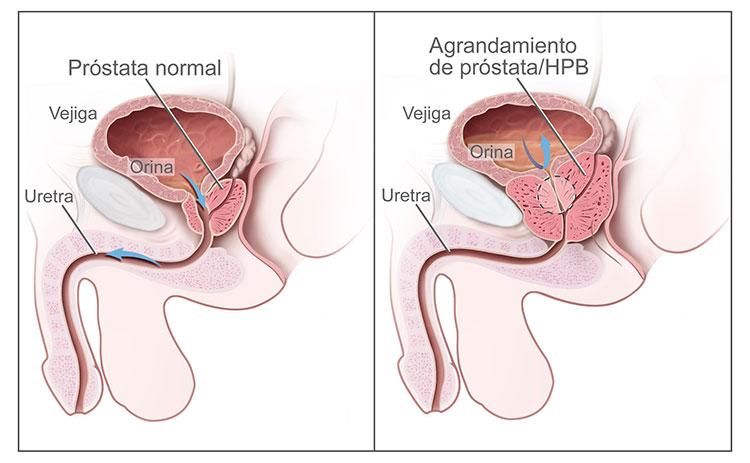 pequeño bulto a la izquierda de la próstata y el elevador psa