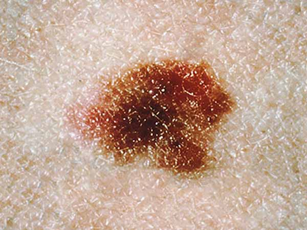 This dysplastic nevus is more than 10 millimeters wide (a little less than 1/2 inch).