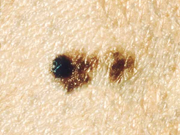 A dysplastic nevus with a black bump that was not there 18 months earlier. The black bump is a melanoma that is about 3 millimeters wide (about 1/8 inch).