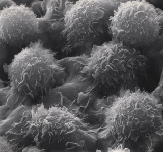 Hairy cell leukemia cells under microscope (courtesy U.S. Department of Energy).