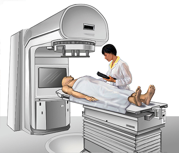 Linear Accelerator Used for External-beam Radiation Therapy
