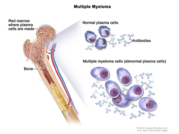 Multiple myeloma cells