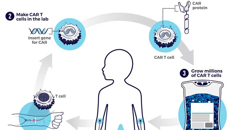 This schematic shows the steps for creating CAR T-cell therapy, a type of treatment in which a patient's T cells (a type of immune system cell) are changed in the laboratory so they will attack cancer cells.