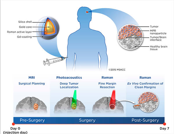 Nanotechnology and Early Cancer Detection and Diagnosis