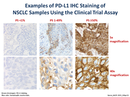 Staining slide of PD-L1 expression