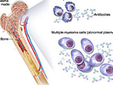 Illustration of Multiple Myeloma