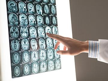 Examining Brain Scans