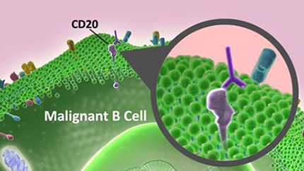 Illustration showing how a monoclonal antibody such as rituximab binds to the CD20 molecule on the surface of a malignant B cell.