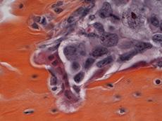 Cuando los tumores tienen metástasis óseas (naranja), los osteoclastos (rojo) promueven la fractura de huesos y el crecimiento de células cancerosas (violeta).