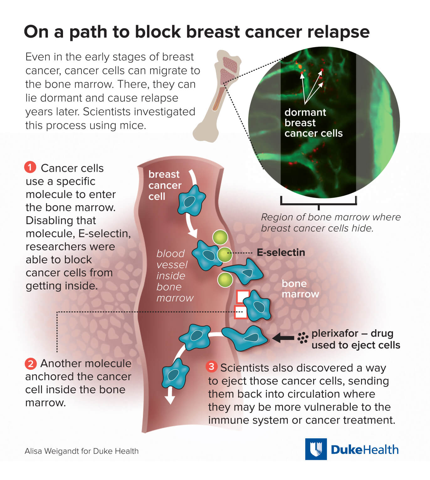 Breast and bone cancer