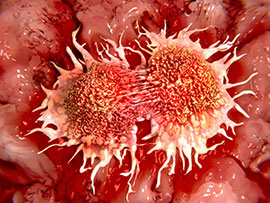 A growing cancer cell divides into two cells.
