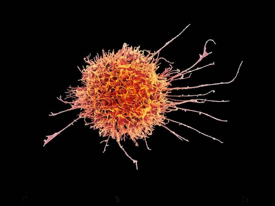 natural killer cells A natural killer cell is a white blood cell that kills pathogens since natural killer cells are so powerful, the body has to.