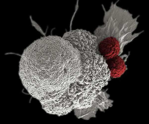 Two cytotoxic T cells attack an oral squamous cancer cell.