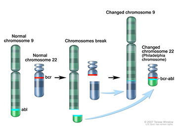 Illustration of translocation, which is when pieces from two different chromosomes trade places and create changed chromosomes. For CML, part of chromosome 9 replaces part of chromosome 22 and creates the Philadelphia chromosome